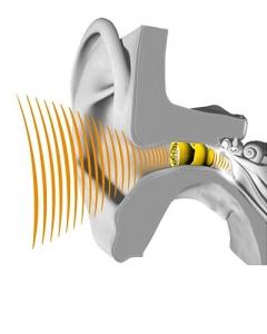 Lyric Hearing Aid