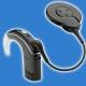 Cochlear N7